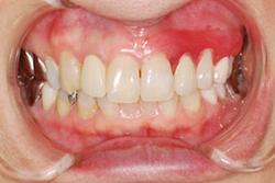 入れ歯のきれいな画像